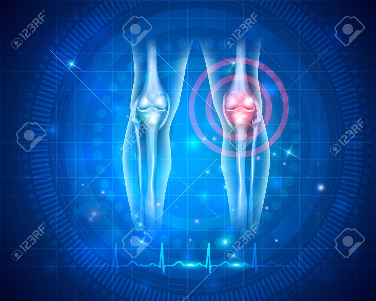 Damaged joint and normal cardiogram at the bottom, joint health care concept - 87283081