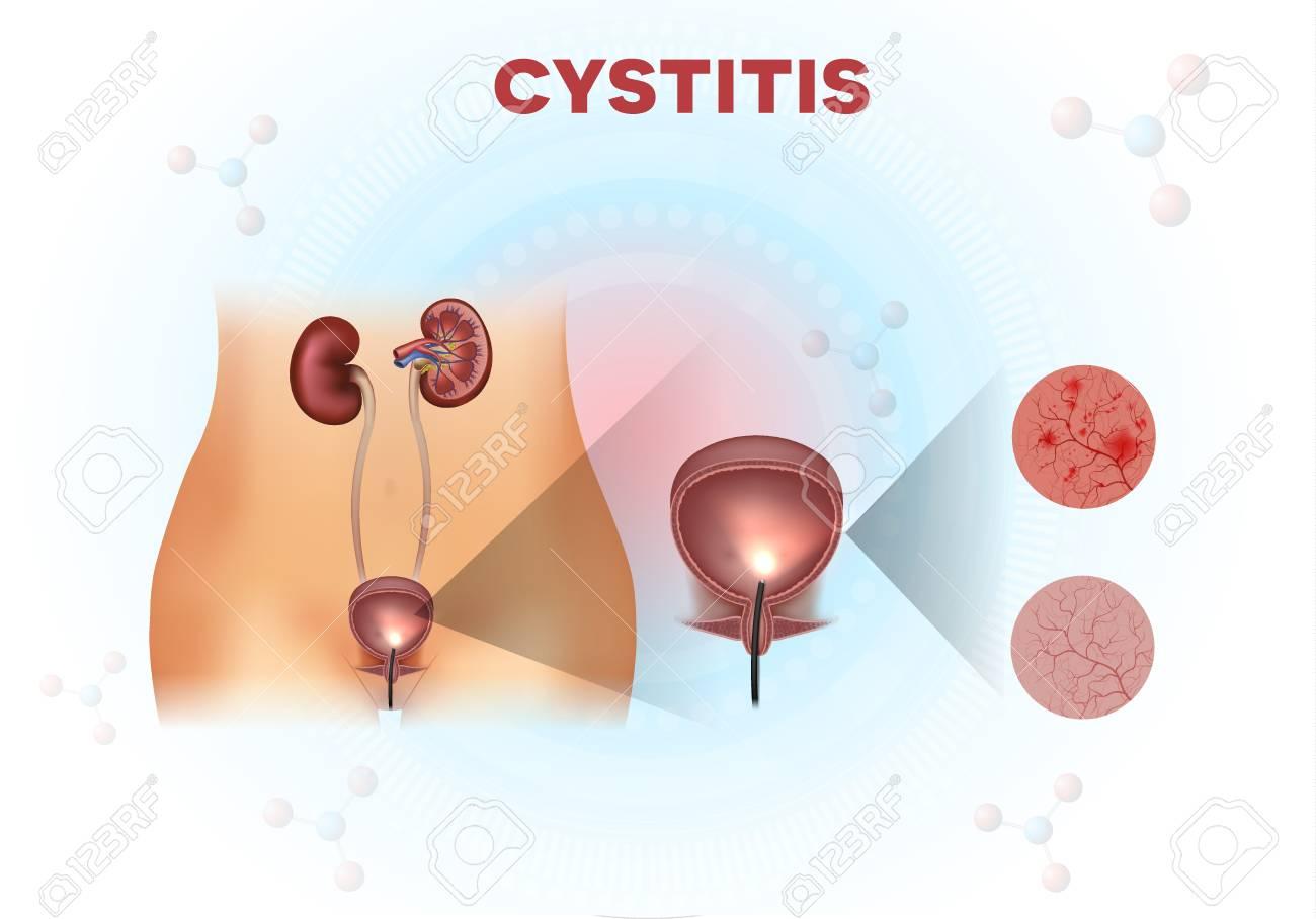 Anatomía Del Sistema Urinario, Examen De La Vejiga Urinaria ...