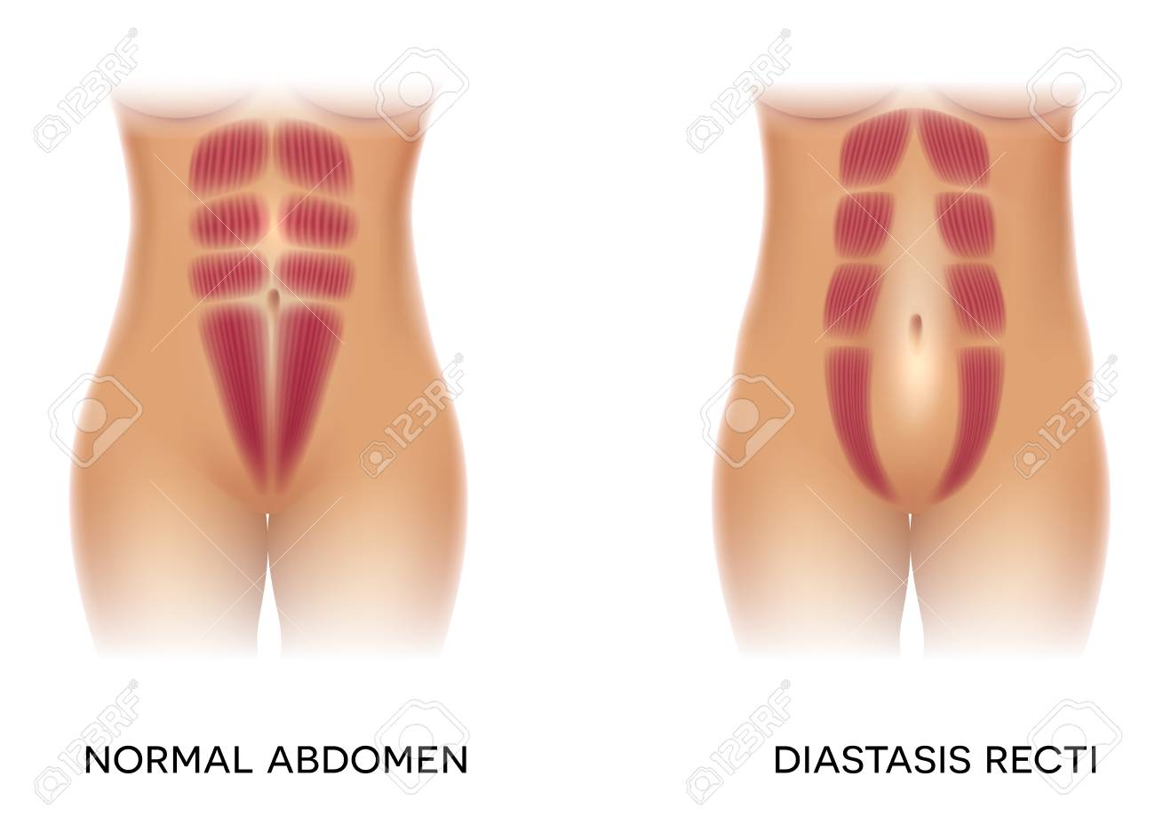 Diastasis recti also known as abdominal separation, it is common among pregnant women. There is a gap between the rectus abdominis muscles. - 111921614
