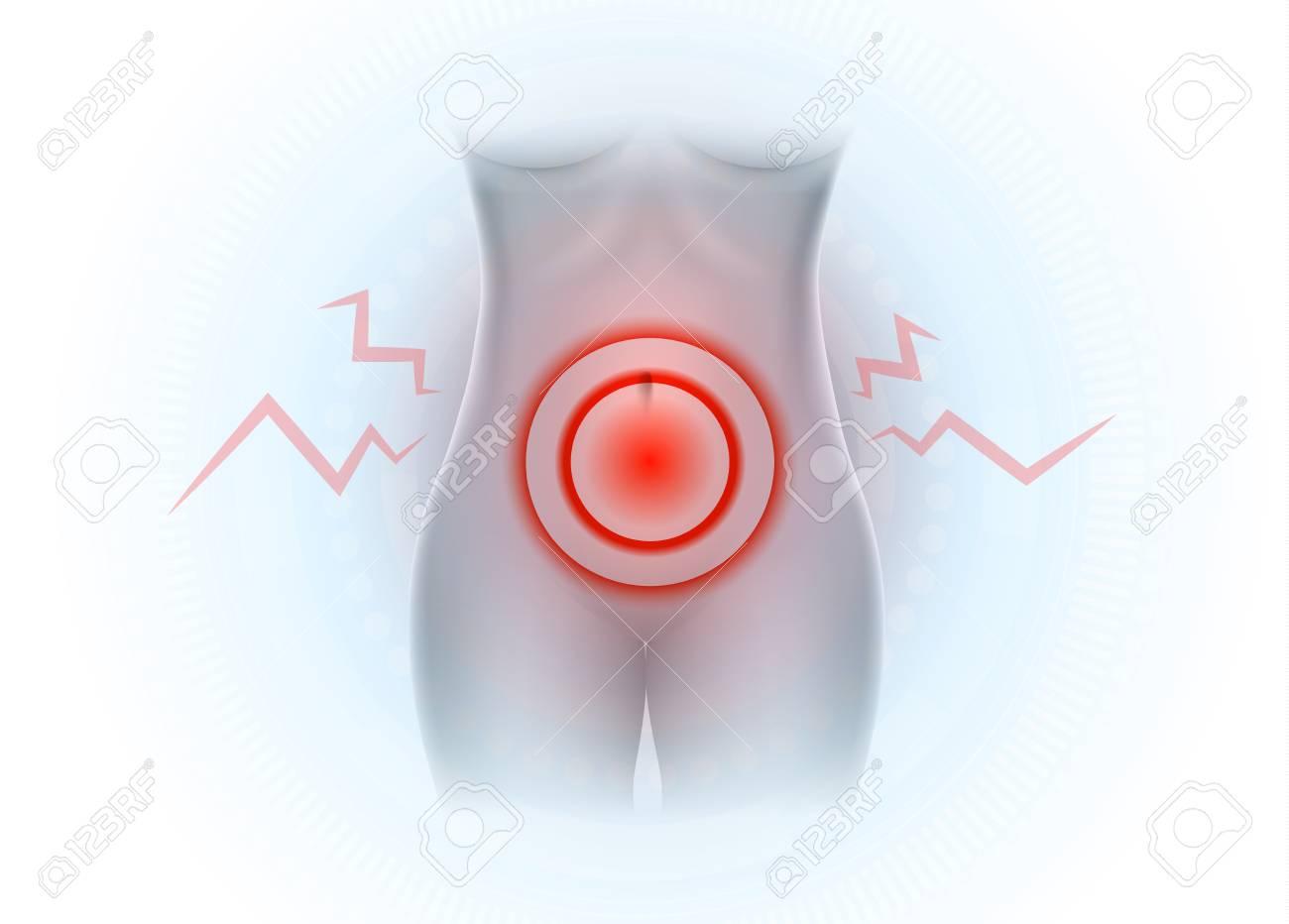 Female Lower Abdominal Pain Pelvic Pain Royalty Free Cliparts
