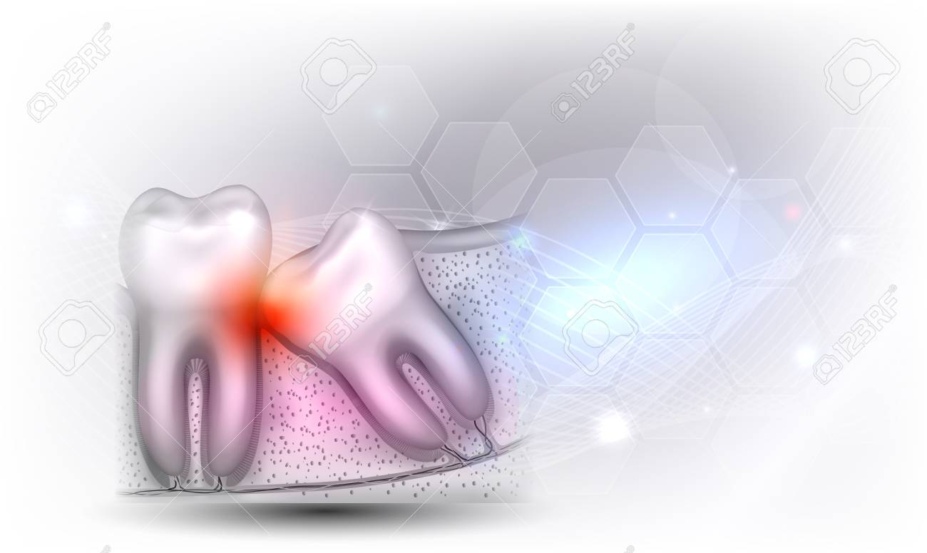 Wisdom tooth eruption problems illustrated anatomy on a beautiful light grey glowing background - 126527322