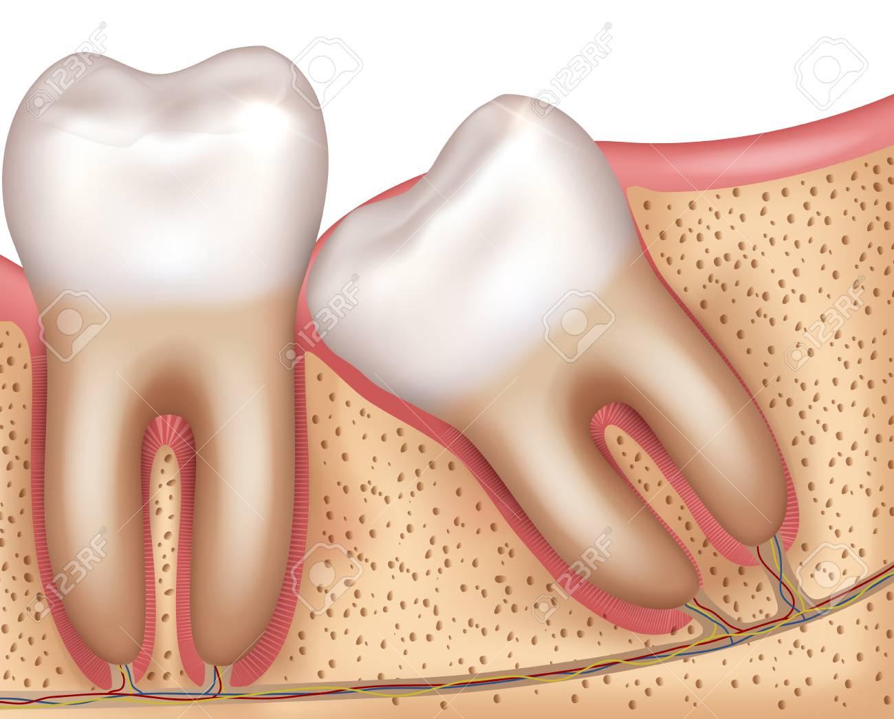 Wisdom tooth eruption problems illustrated anatomy - 126527324