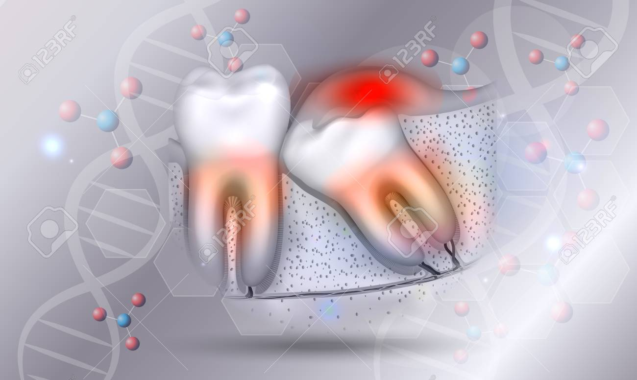 Wisdom tooth eruption inflamed gums illustrated anatomy on a beautiful abstract scientific background - 126034770