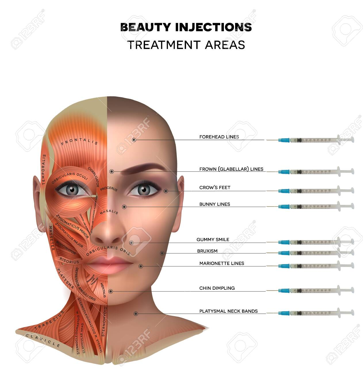 Beauty aesthetic injections treatment areas; Muscles structure of the female face and neck, each muscle with name on it. - 140984861