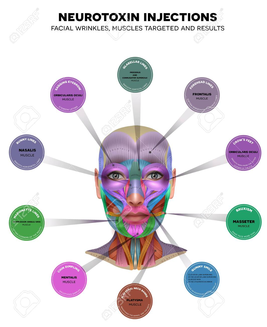 Injections for facial wrinkles. Common types of facial wrinkles. Neurotoxin injections treatment areas, muscles targeted and results. - 139945293