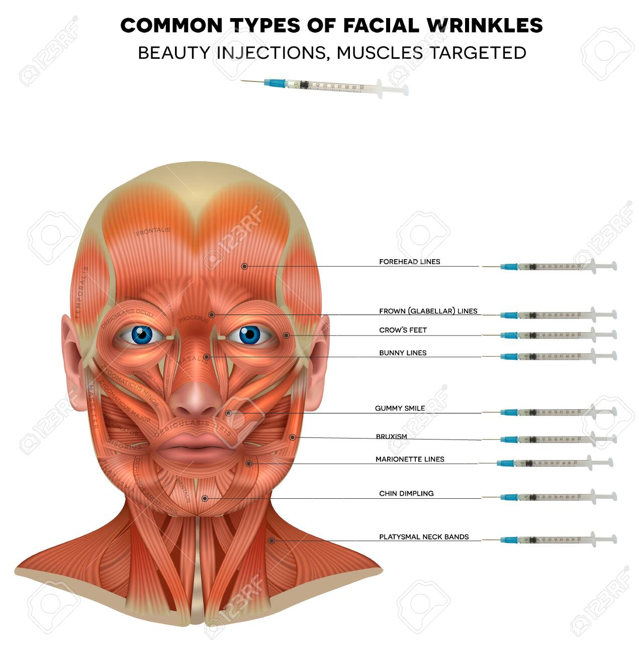 Facial injections info poster, male model face muscles anatomy. Common types of facial wrinkles. Neurotoxin injections treatment areas, - 140557797