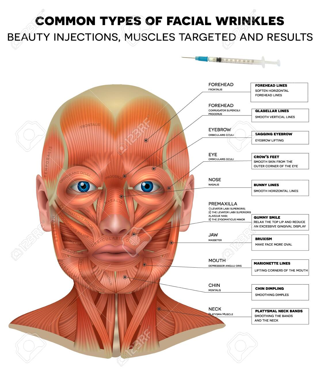 Facial injections info poster, male model face muscles anatomy. Common types of facial wrinkles. Neurotoxin injections treatment areas, treated muscles and results. - 140557807