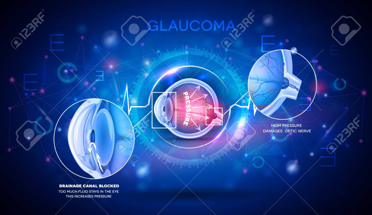 Glaucoma vision disorder abstract blue scientific background, detailed anatomy digital futuristic illustration - 141967864