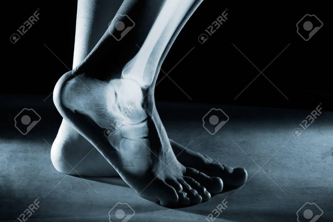 Menschlicher Fuß Knöchel Und Bein In X-ray, Auf Grauem Hintergrund ...