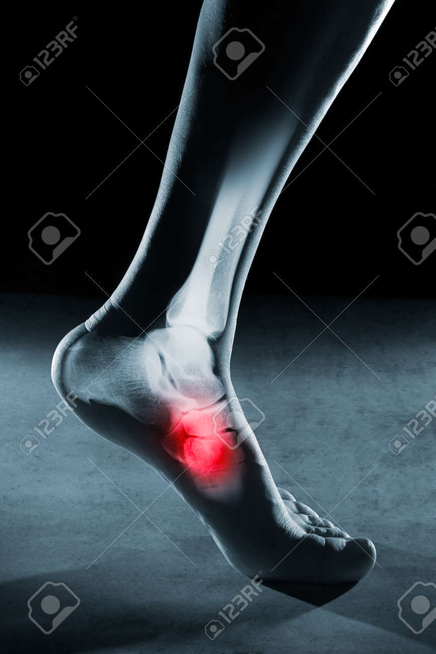 Human foot ankle and leg in x-ray, on gray background. The foot ankle is highlighted by red colour. - 60406294