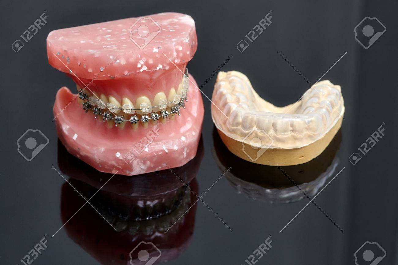 Human Jaw Or Teeth Model With Metal Wired Dental Braces And ...