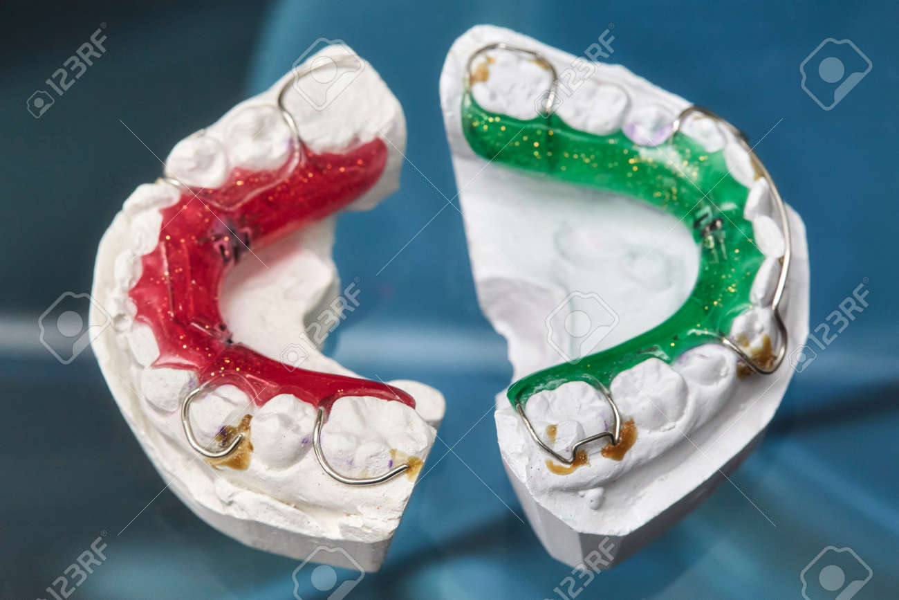 Colorful Dental Braces Or Retainers For Teeth On Black Glass.. Stock ...