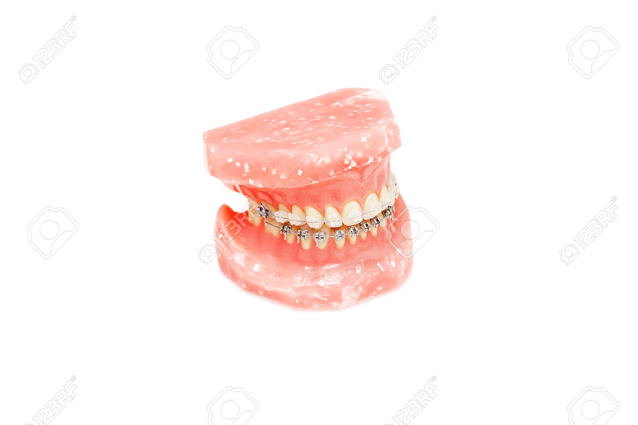 Amazing Metall Wire Dental Braces On Jaw Or Teeth Orthodontic Model Stock Wiring Digital Resources Cettecompassionincorg