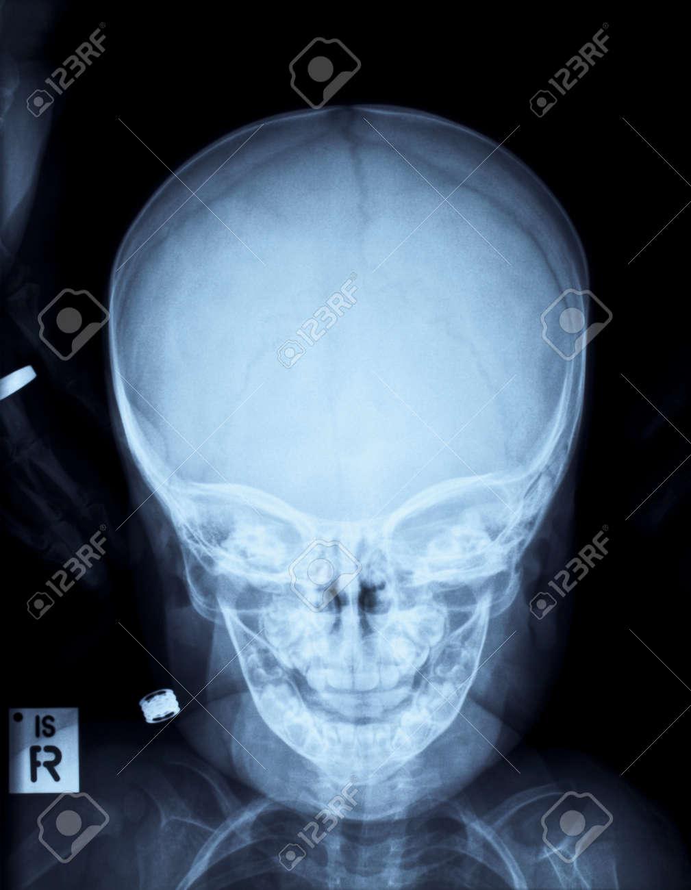 Röntgenbild Eines (menschlichen) Kind Schädel Ohne Befund Nach ...