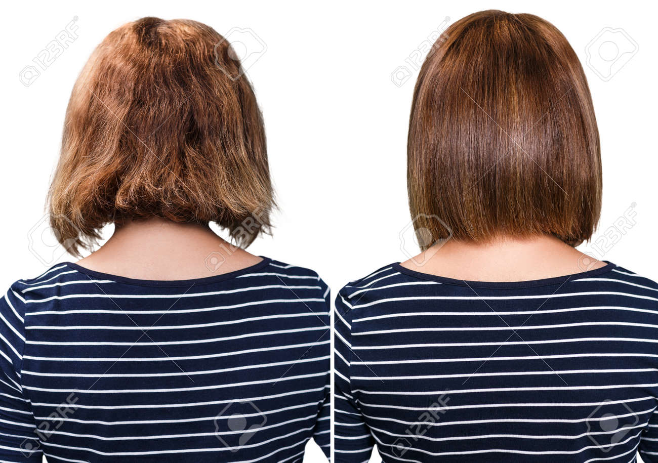 Comparative portrait of damaged hair before and after treatment - 65006746