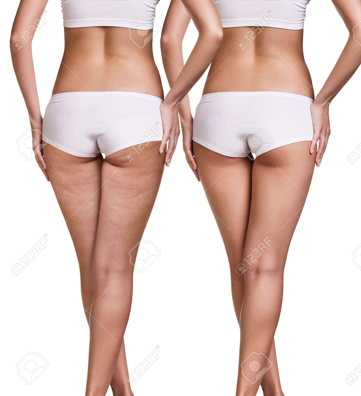 Female before and after cellulite skin isolated on white - 68291325