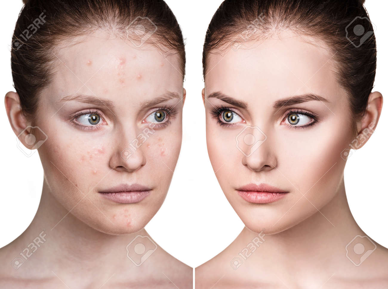 Girl with acne before and after treatment. - 74441961