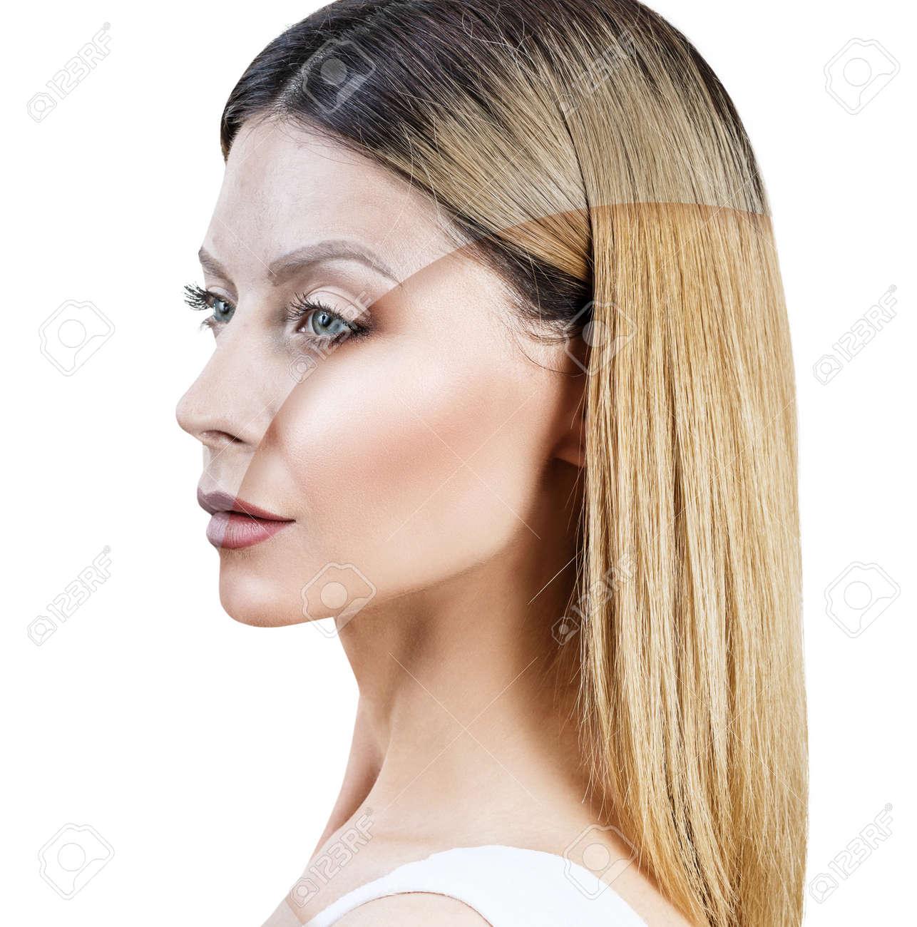 Acne adult female treatment