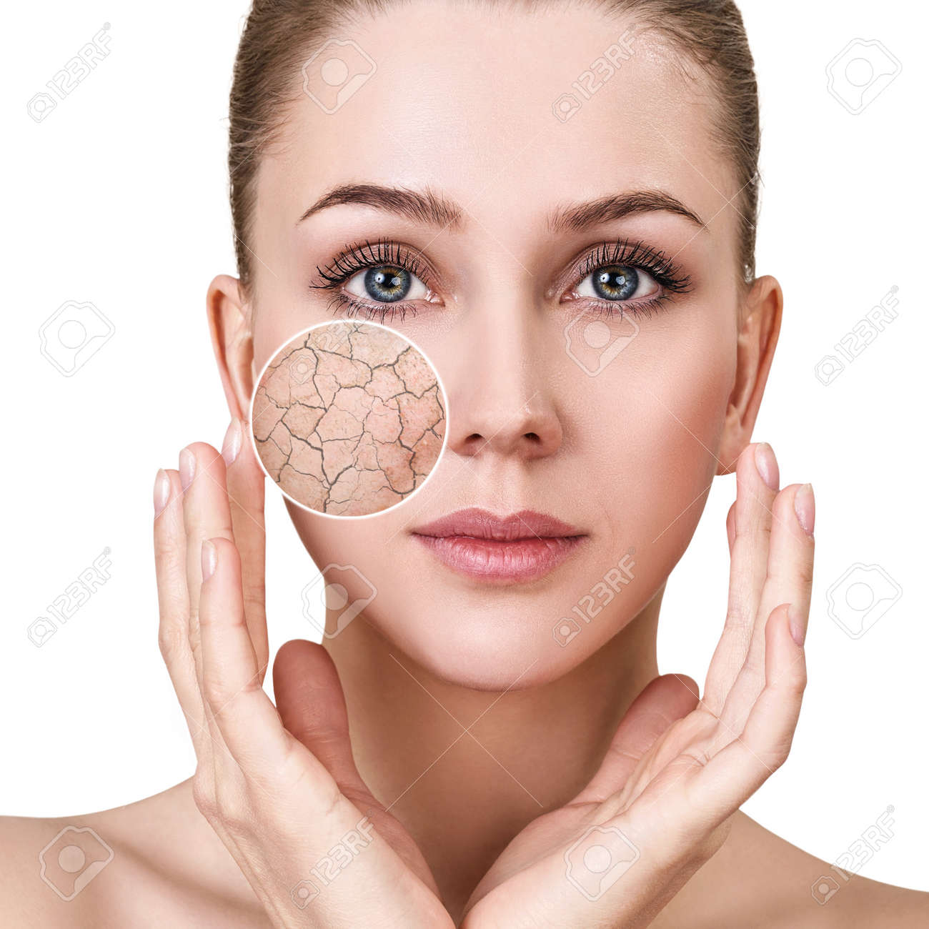 Zoom circle shows facial skin before moistening. - 94732414