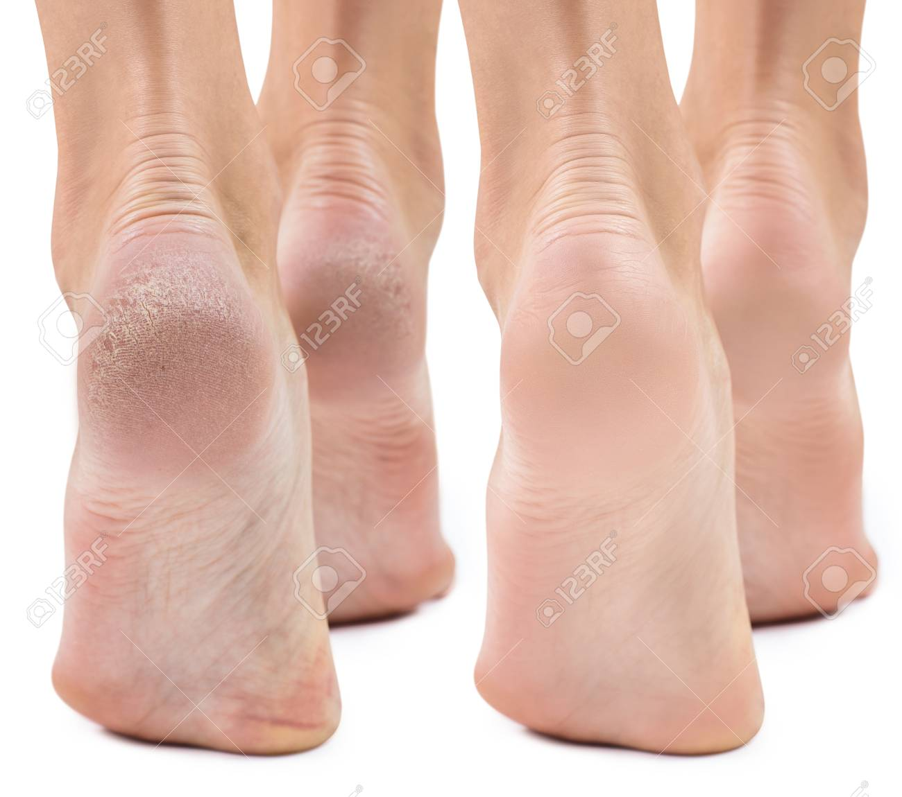 dry skin on feet treatment