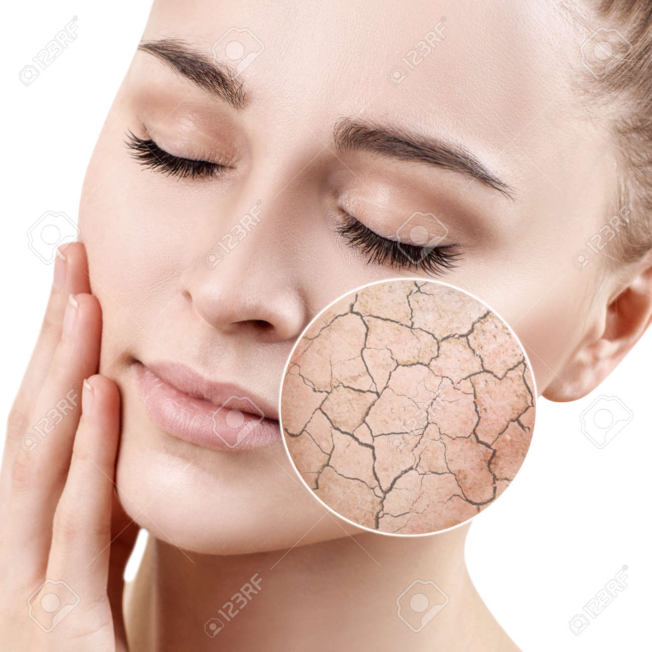 Zoom circle shows dry facial skin before moistening. - 99942119