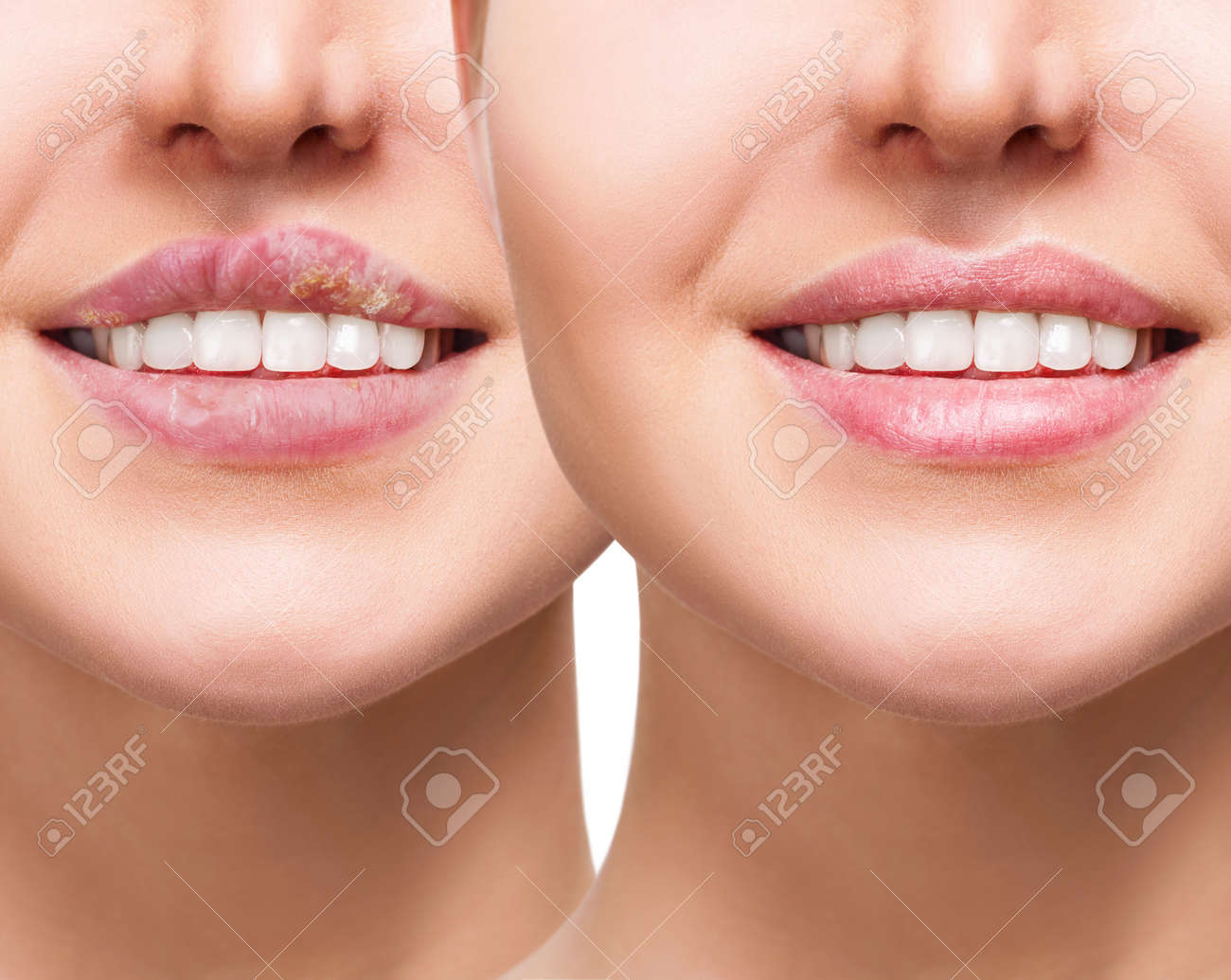 Female lips with herpes sore before and after treatment