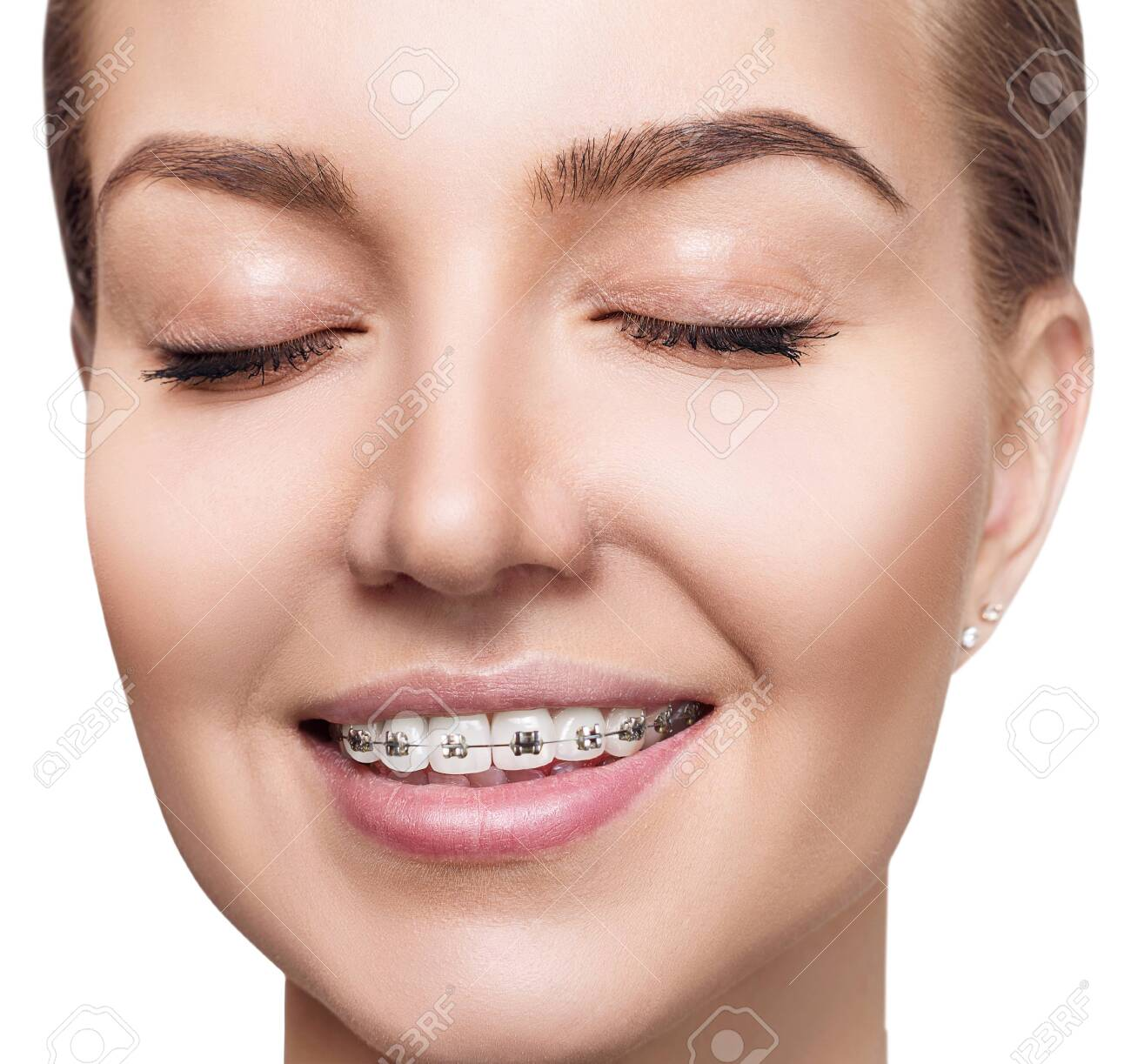 Young woman with braces on teeth. - 129089156