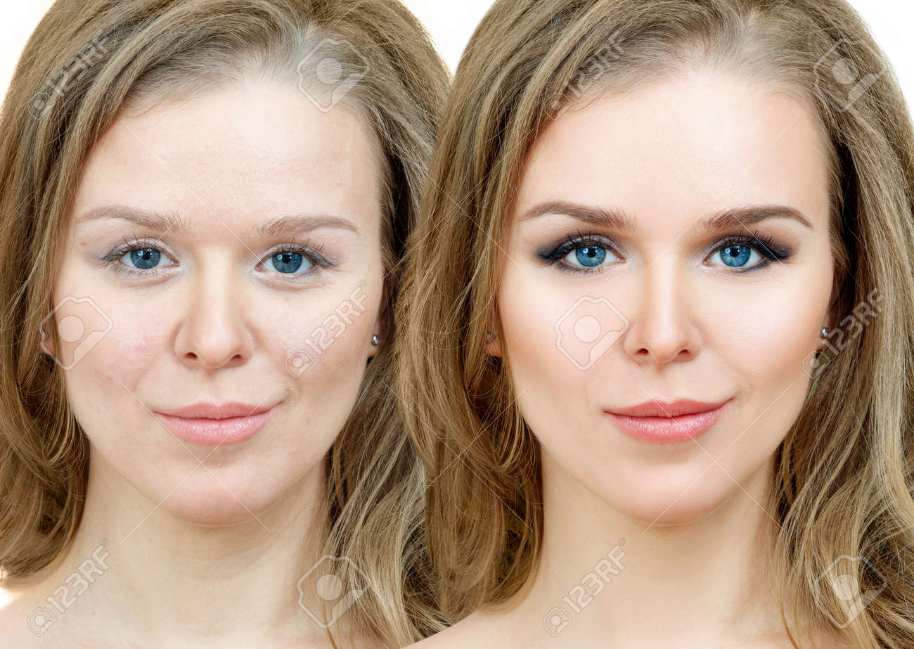 Woman With Acne Before And After Treatment And Makeup Stock Photo Picture And Royalty Free Image Image 138251354