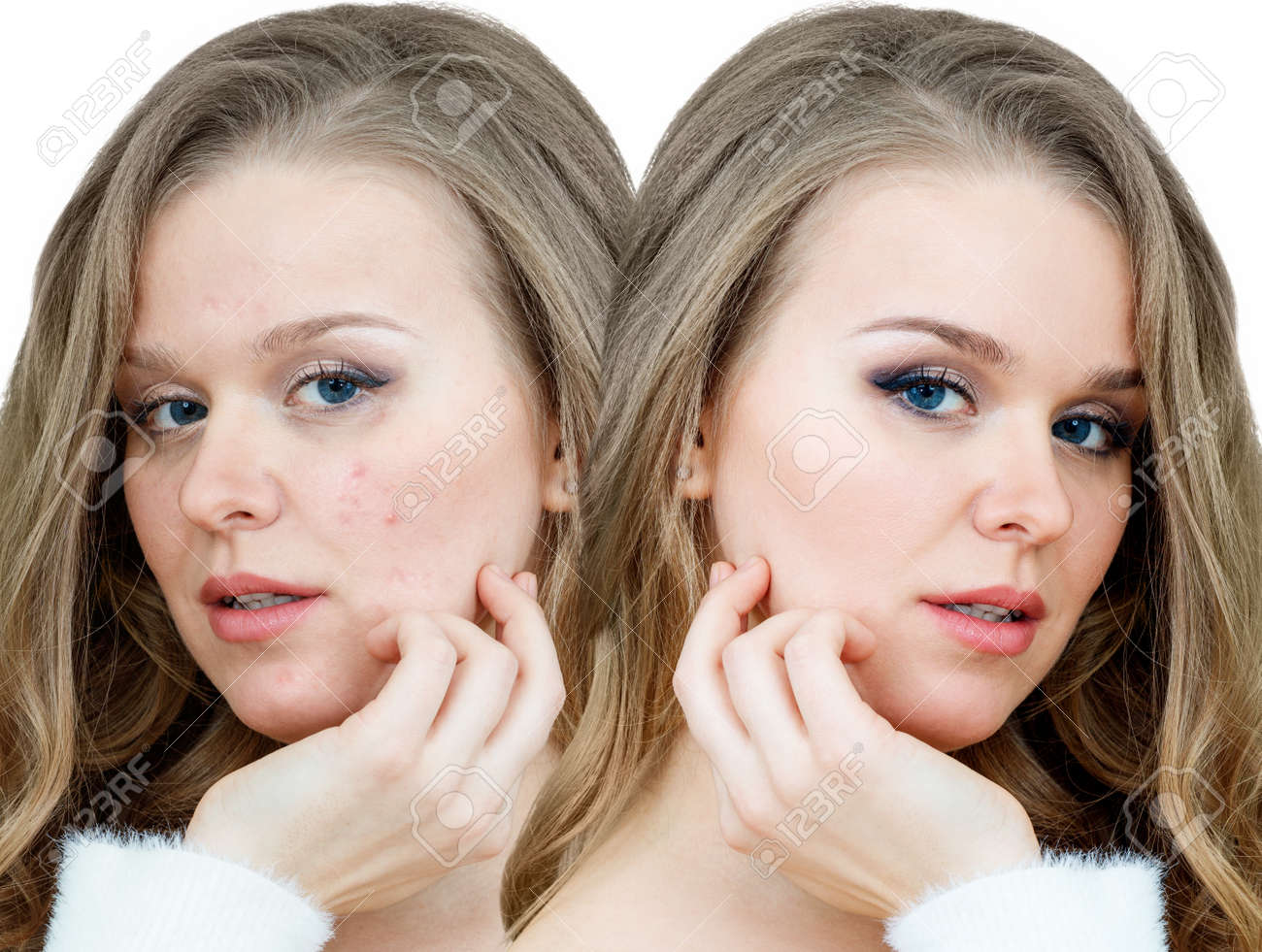 Woman With Acne Before And After Treatment And Makeup Stock Photo Picture And Royalty Free Image Image 139371383