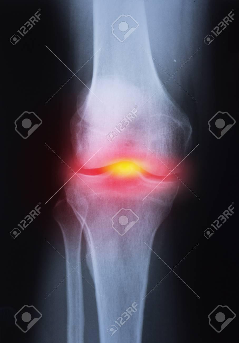Medical x-ray knee joint image with arthritis ( Gout , Rheumatoid arthritis , Septic arthritis , Osteoarthritis knee ) - 114018846