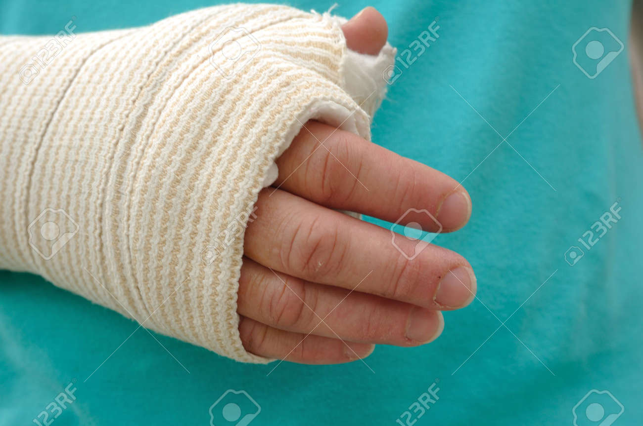 Injured Hand And Arm Wrapped In An Elastic Bandage Stock Photo