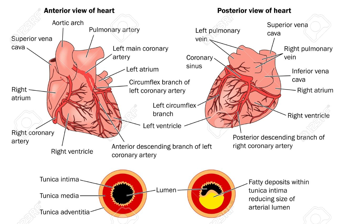 Anterior and Posterior views of the heart showing atheroma Stock Vector - 12092761