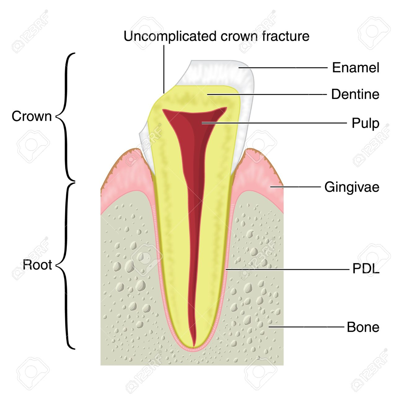 Cross section of a typical tooth with fracture royalty free cross section of a typical tooth with fracture stock vector 13731107 pooptronica