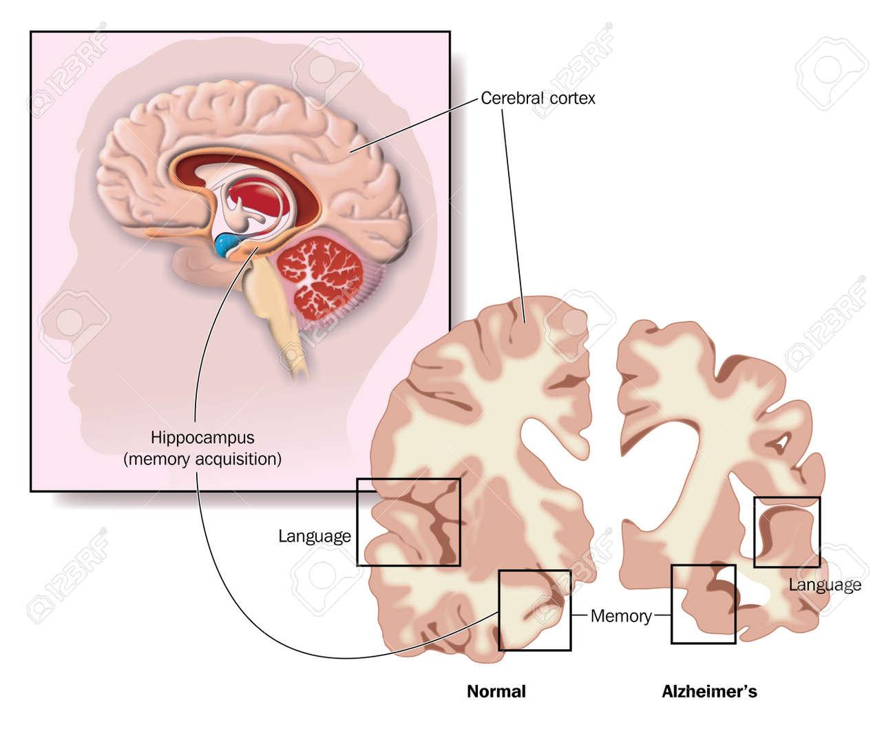 Dibujo Del Cerebro Que Muestra El Hipocampo Y Las Zonas De ...