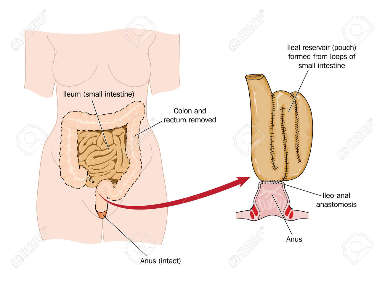 Drawing Of An Ileo-rectal Pouch Made From Ileum Following Bowel ...