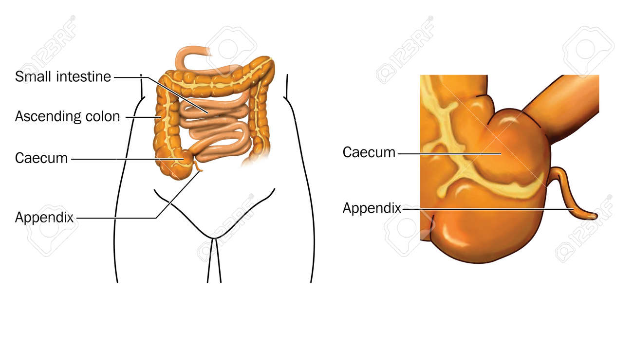 Drawing Of The Small And Large Intestine With Detail Of Caecum ...