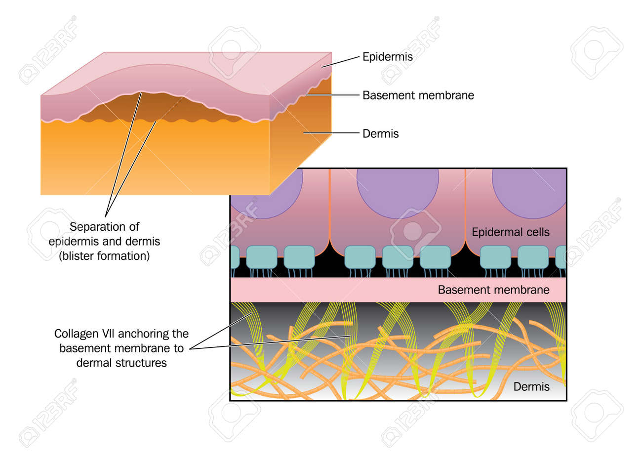 drawing of blister formation in skin disease such as epidermolysis bullosa,  where the epidermis separates
