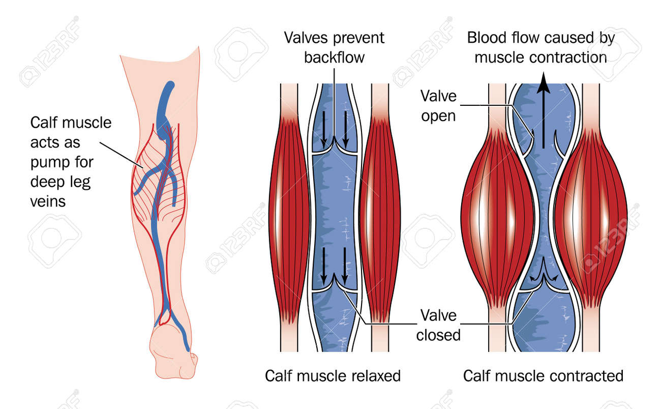 Drawing To Show The Action Of The Calf Muscle In Pumping Blood ...