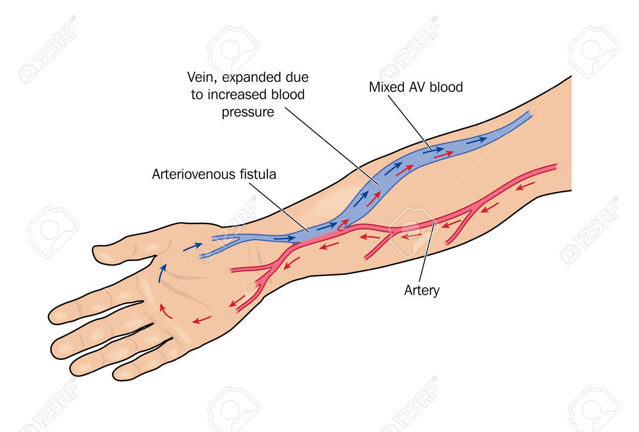 Fistula Formed Between Artery And Vein In The Arm To Provide ...