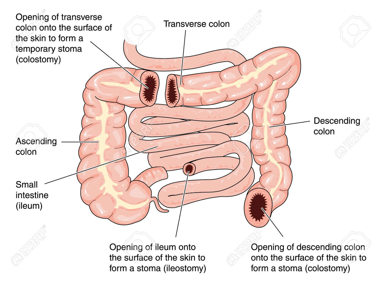 Sites Of Colostomies In The Transverse And Descending Colon
