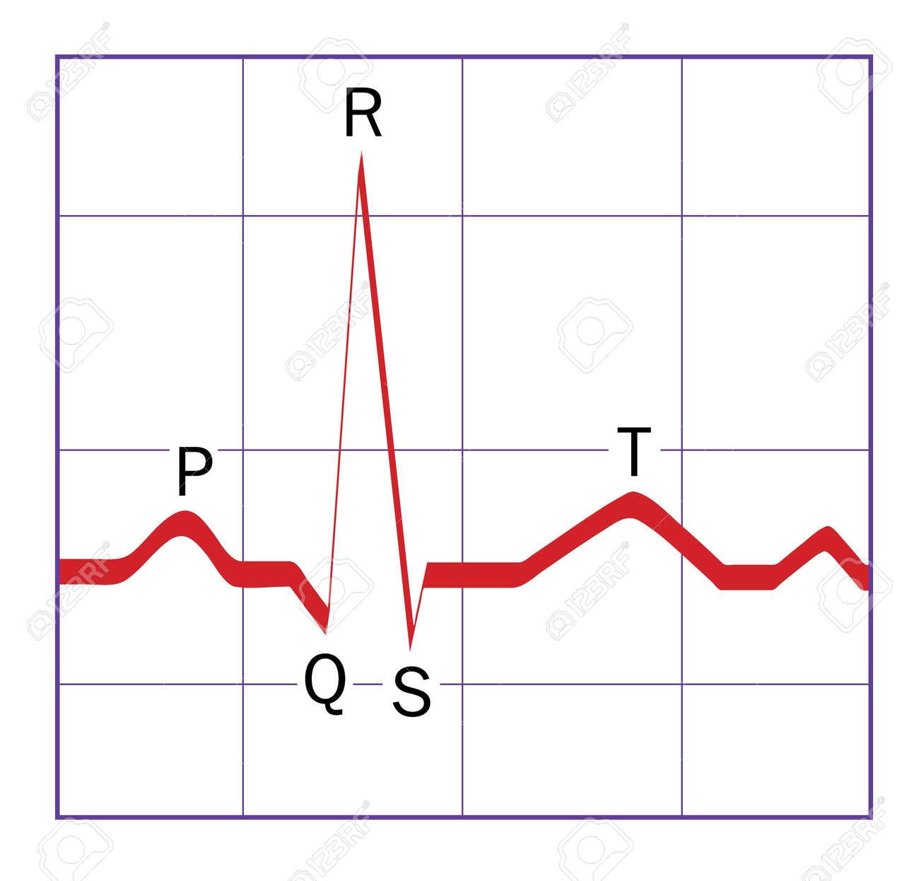 Una Típica Ideal Estilizado Corazón QRS ECG Traza, Con Los P, Q, R ...