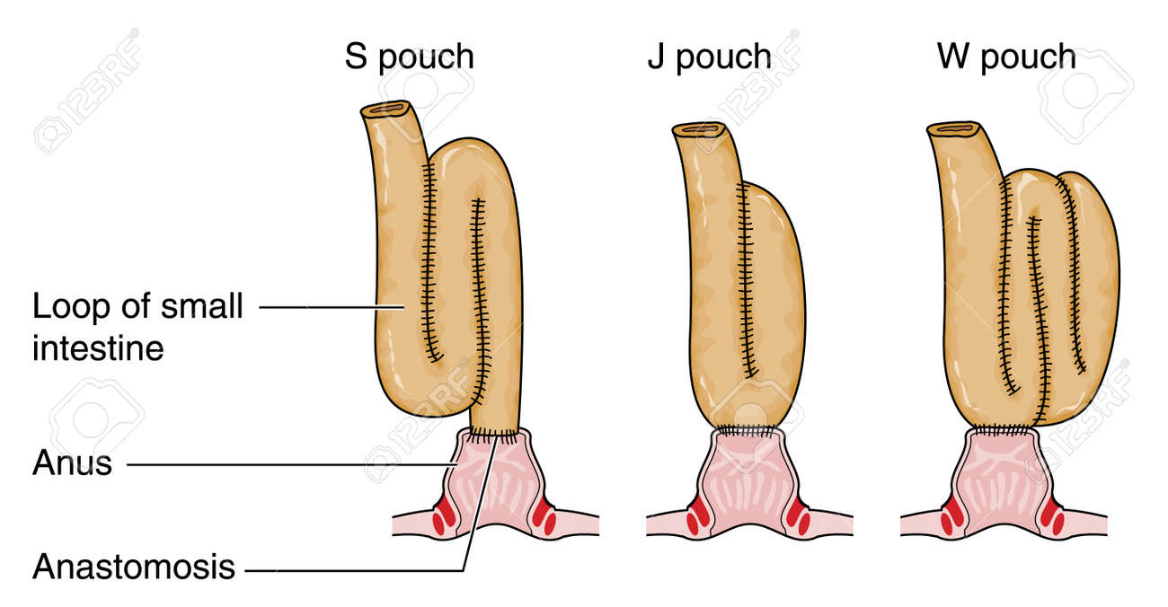 Three types of rectal pouch formed from a loop of small intestine following bowel removal Stock Vector - 15059124