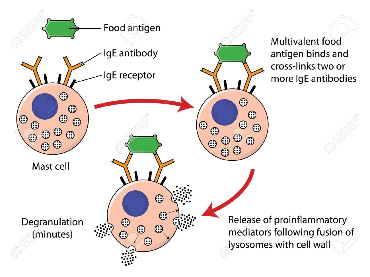 Food allergy mechanism showing the combination of a food antigen with IgE antibodies on the surface of a mast cell, resulting in degranulation of inflammatory mediators Stock Vector - 15059119
