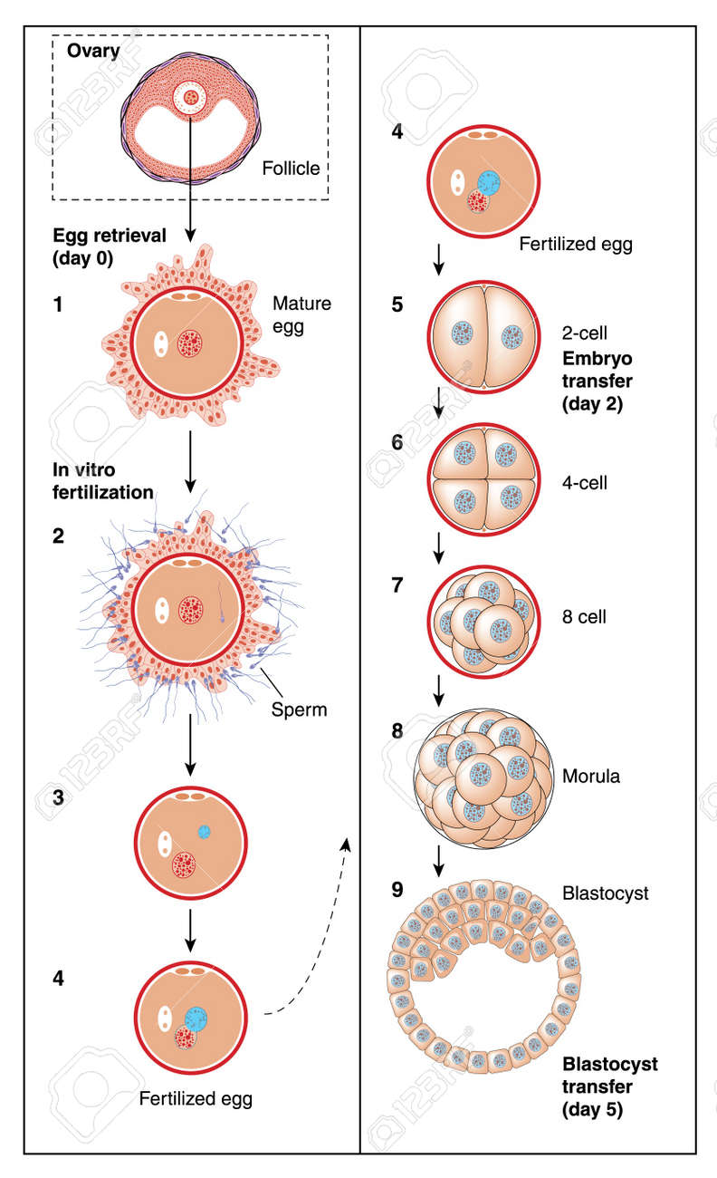 The stages of in vitro fertilization, from follicle and egg retrieval