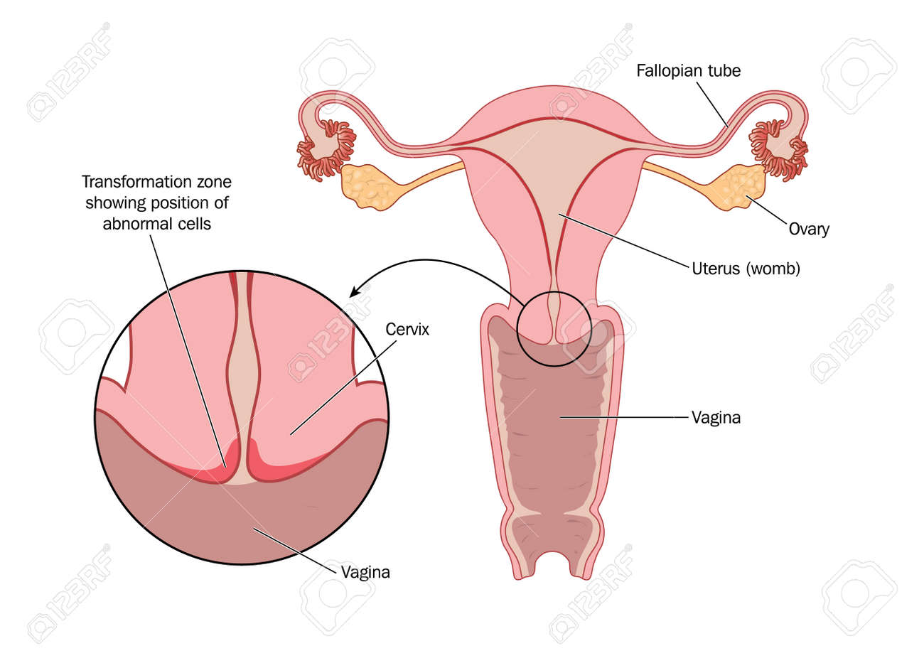 2041 cervix stock illustrations cliparts and royalty free cervix transformation zone of cervix illustration ccuart