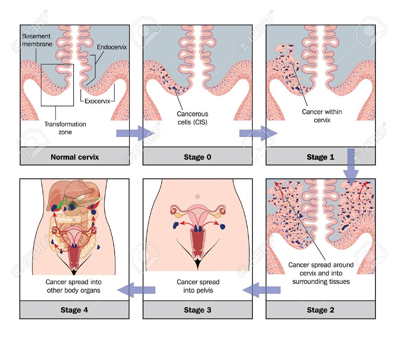 Development Of Cervical Cancer Royalty Free Cliparts, Vectors, And ...