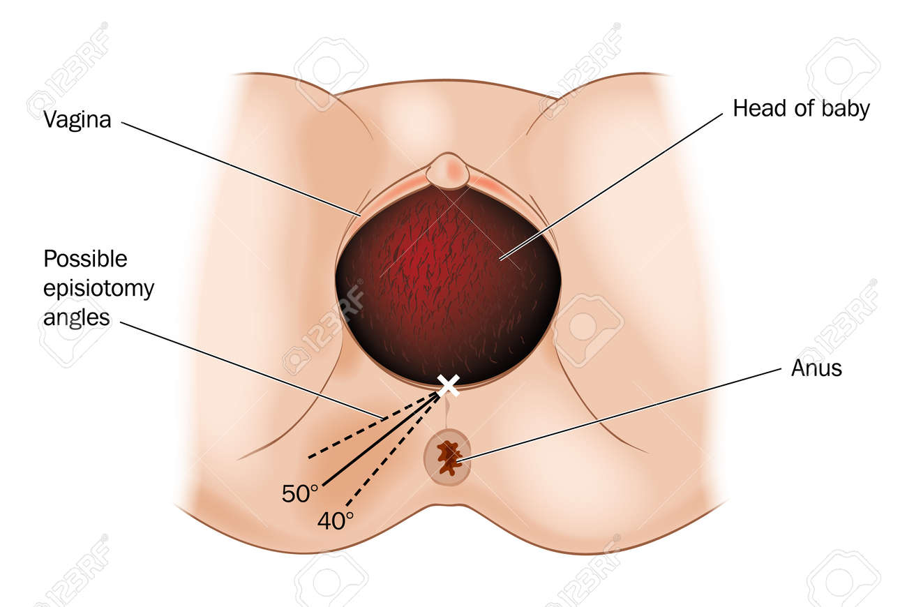 Drawing Of Possible Episiotomy Angles Performed During Childbirth ...