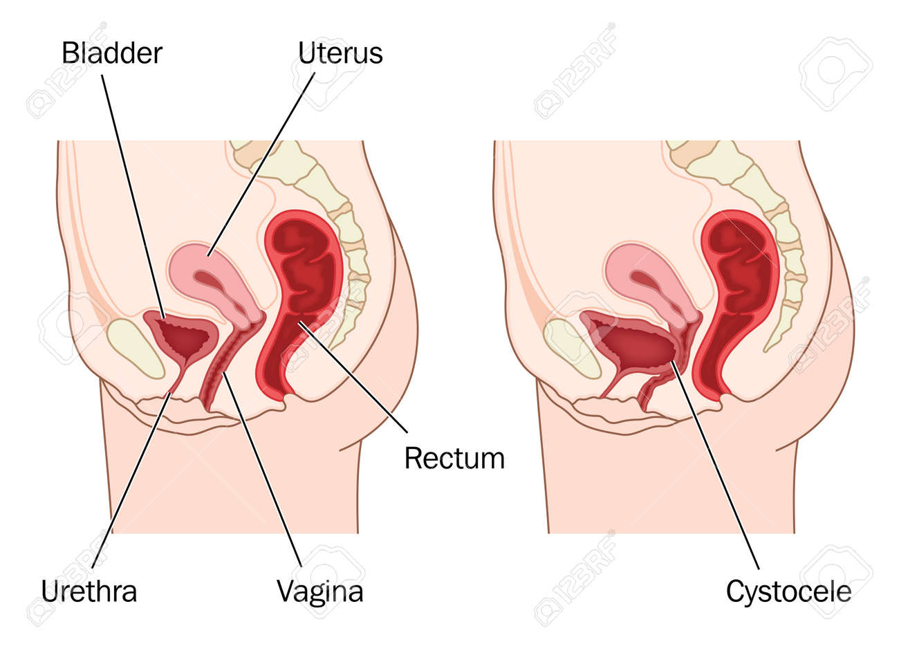 Drawing to show normal female abdominal anatomy and a prolapsed bladder, resulting in a cystocele. Created in Adobe Illustrator.  Contains transparencies.  EPS 10. Stock Vector - 31465649