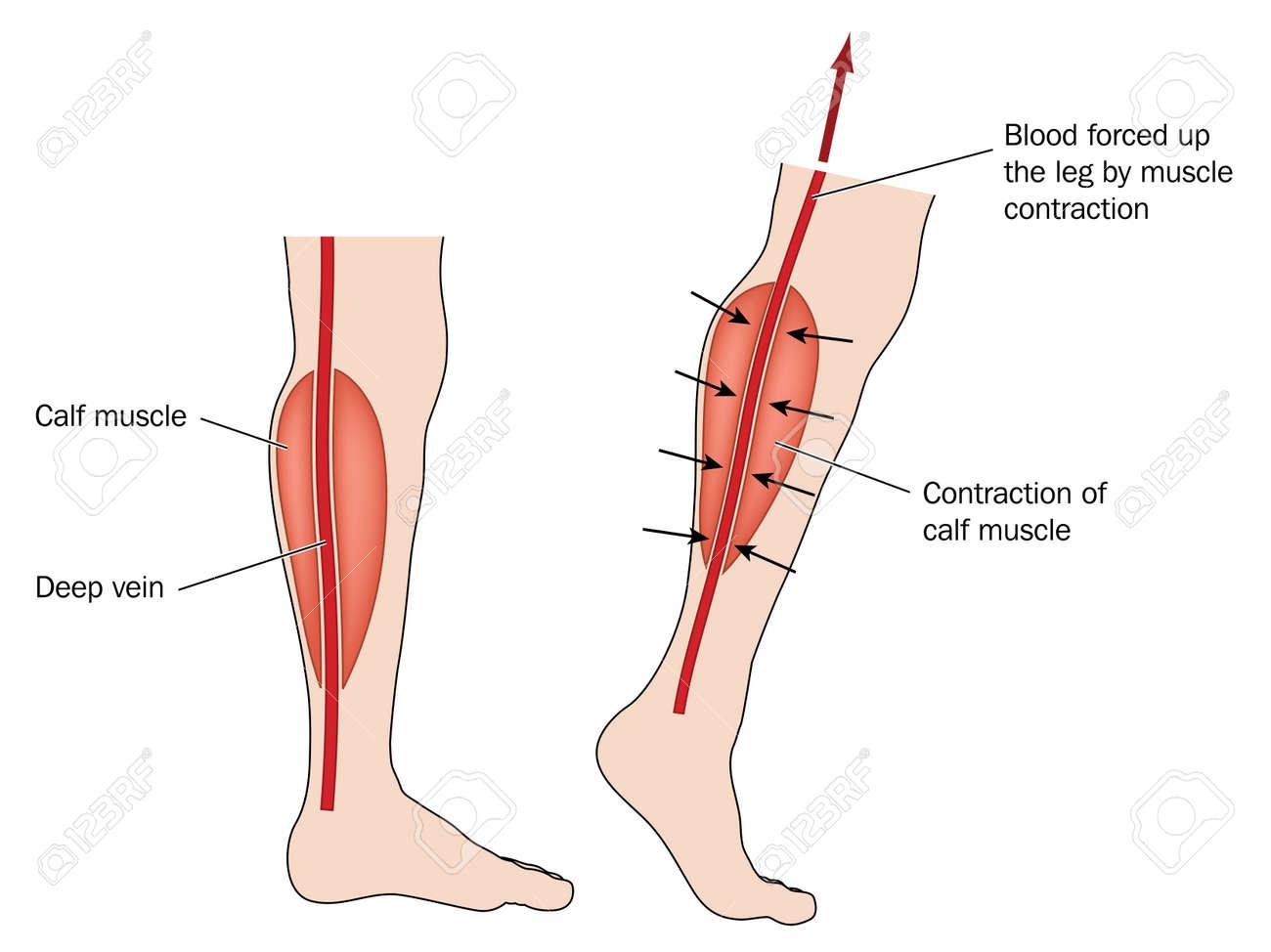 ふくらはぎの筋肉のポンプのための足から押し上げ血を表示する描画