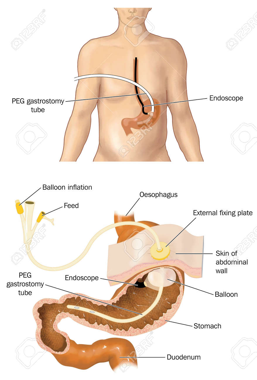 Drawing Of A PEG Tube Percutaneous Endoscopic Gastrostomy With ...